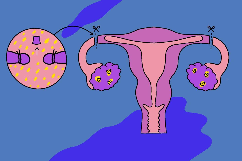 Женская стерилизация — метод контрацепции, который доступен женщинам старше 35 лет.