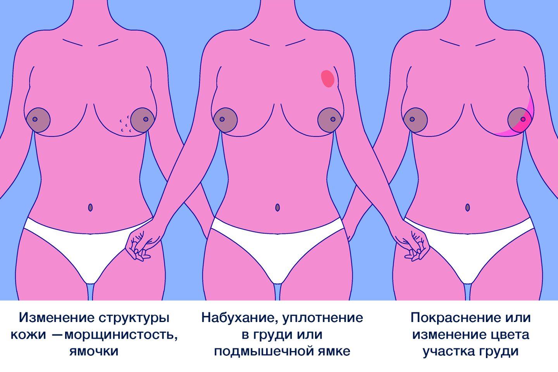 Симптомы рака груди: морщинистость, ямочки, уплотнение, покраснение молочной железы.