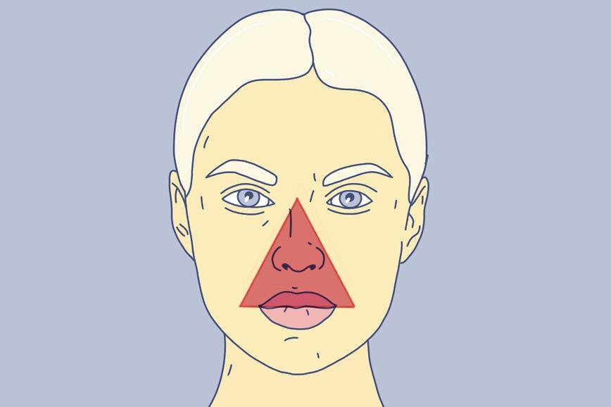 Нельзя выдавливать прыщи вокруг носа — эта зона называется «треугольник смерти»