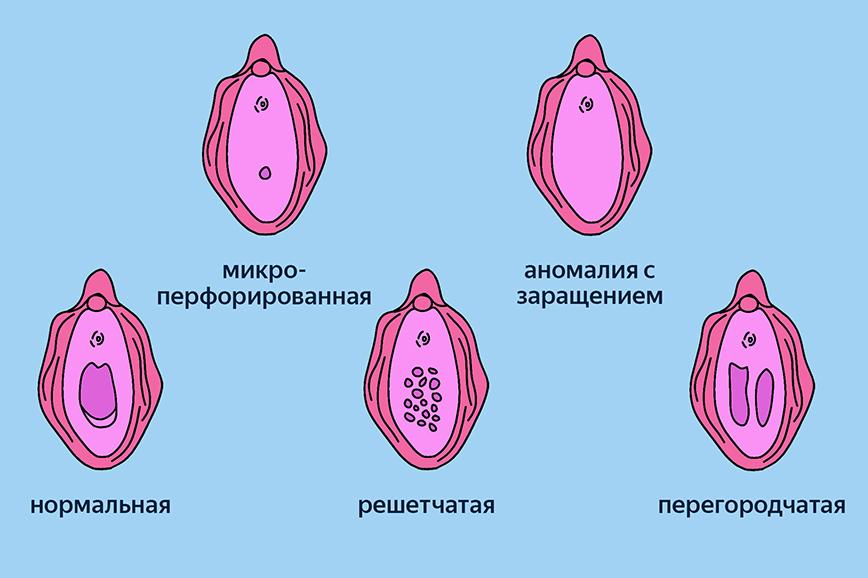 Первый секс: разные типы девственной плевы