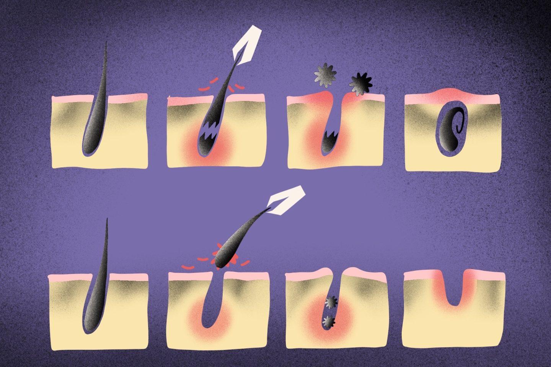 Отрастить брови после удаления волос пинцетом может быть сложно